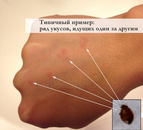На фото: кучность укусов клопов