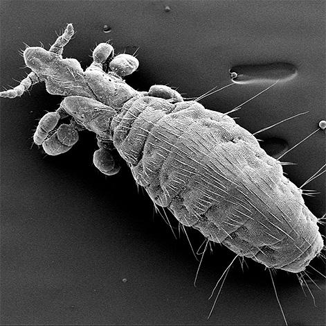 На фото: вошь под микроскопом