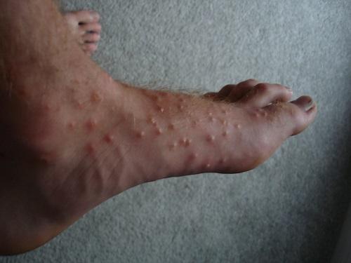 На фото: последствия укусов клещей